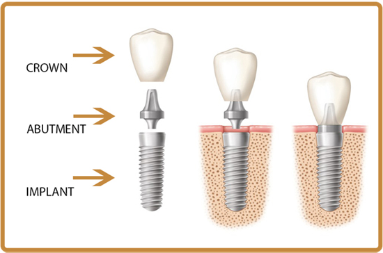 advantages of dental implants over dentures or a bridge every way you look at it dental implants are a better solution to the problem of missing teeth