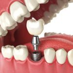 Bone Grafting for Dental Implants at San Diego Periodontics & Implant Dentistry