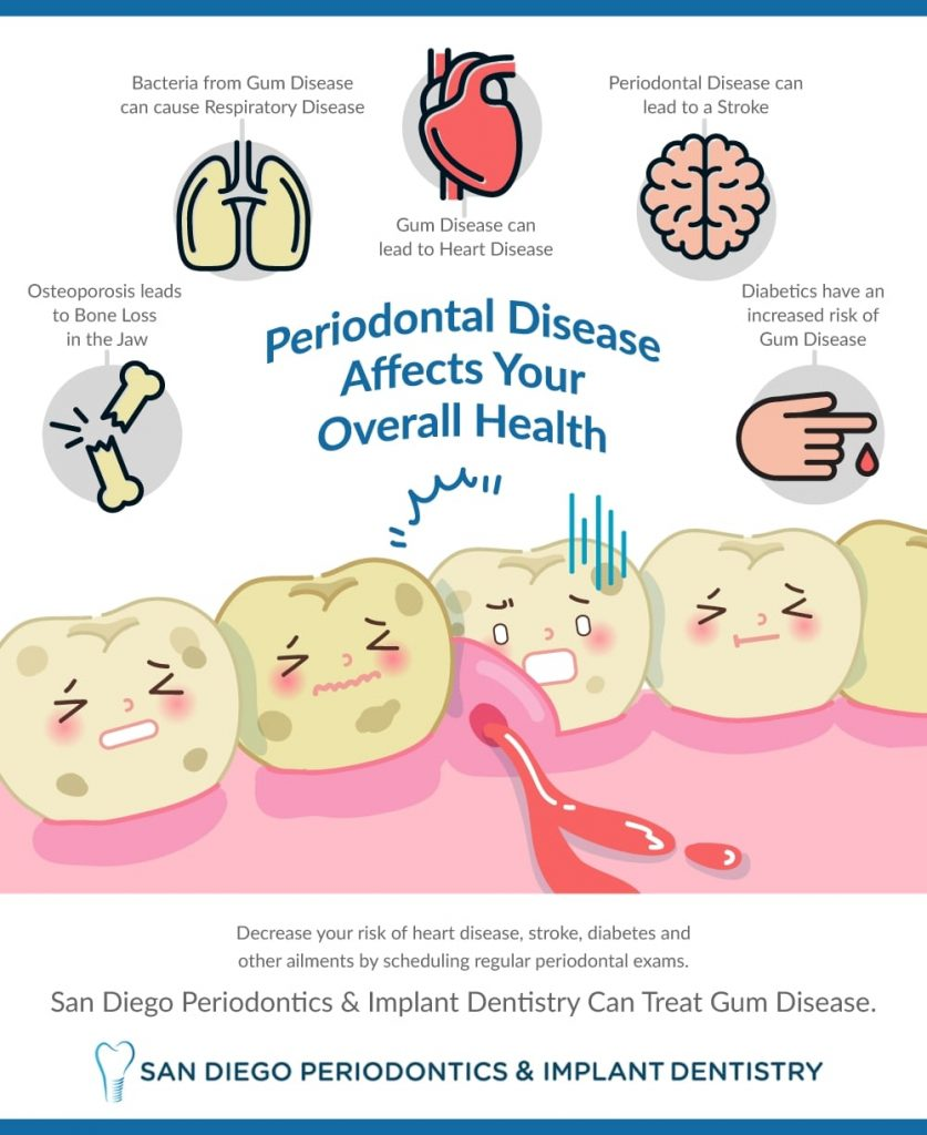 Infographic Periodontal Disease By San Diego Periodontics & Implant Dentistry