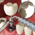 Dental Implant Procedure Explained by San Diego Periodontist