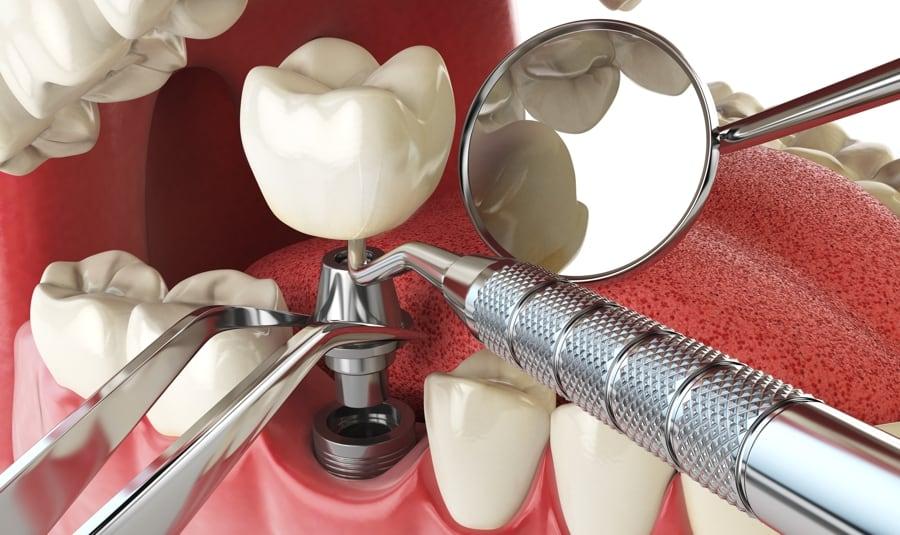 Dental Implant Procedure Explained by San Diego Periodontist