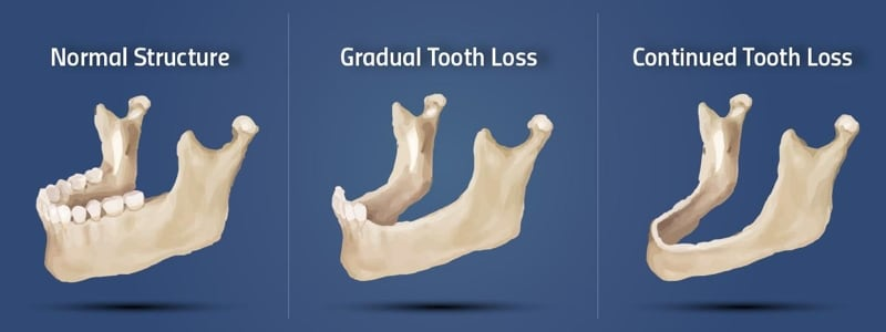 bone grafting bone loss illustration
