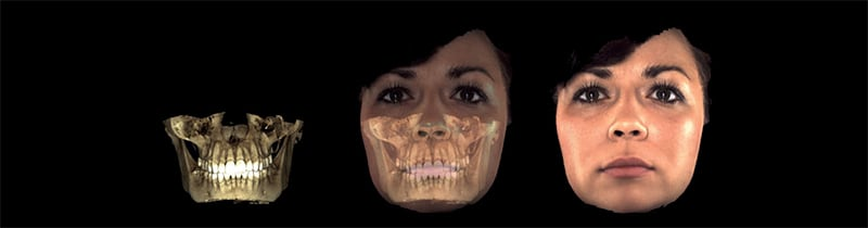 Planmeca Promax 3D Scanning San Diego Periodontics & Implant Dentistry