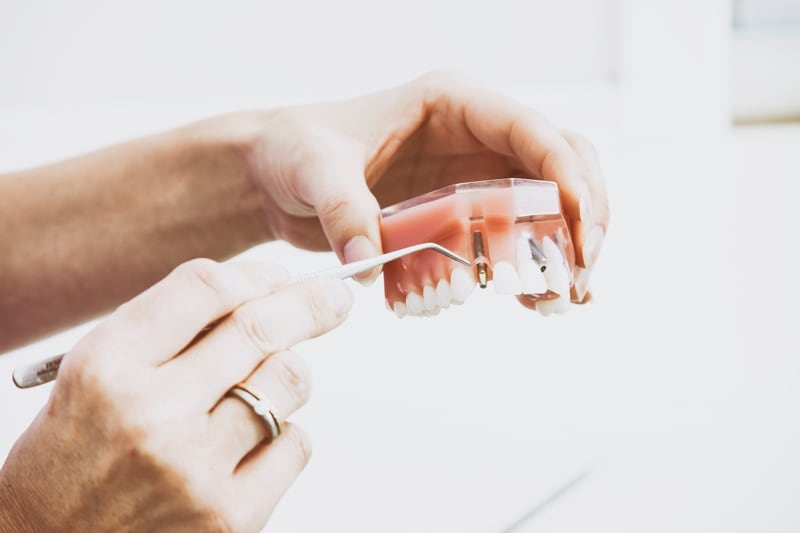 Types of Dental Implants San Diego Periodontics & Implant Dentistry