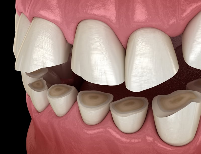 Teeth Grinding Solution San Diego Periodontics & Implant Dentistry