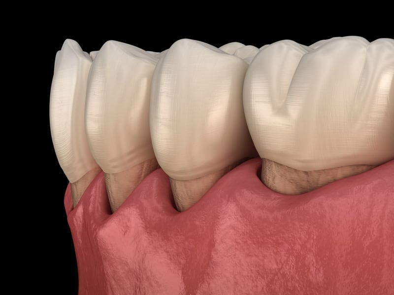 San Diego Gum Graft Donor Tissue Vs Own Tissue for Gum Recession