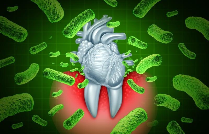 link-between-gum-disease-and-heart-disease-san-diego-periodontics-&-implant-dentistry