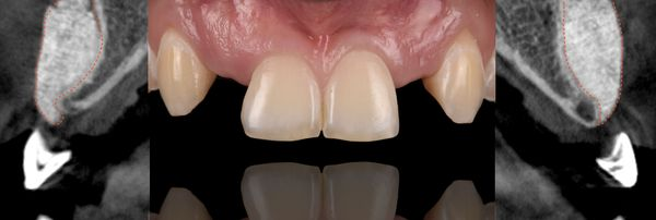 S.M.A.R.T. Bone Grafting San Diego Periodontics & Implant Dentistry Dental Implant Placement