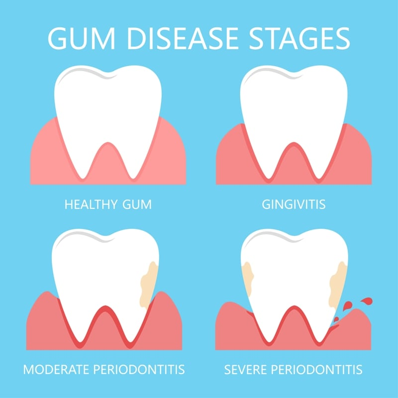 4 Stages of Periodontal Disease by San Diego Periodontics & Implant Dentistry