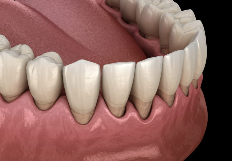 Best Treatment For Gum Recession by San Diego Periodontics & Implant Dentistry